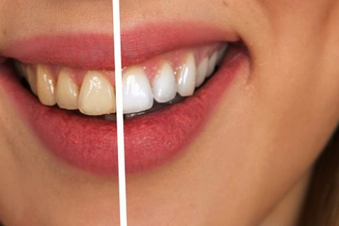 The impact gum disease has on your implants